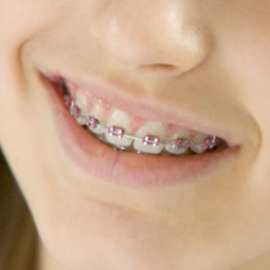 braces colors—pink