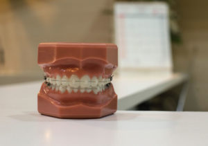 model of teeth wearing one type of braces